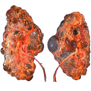 damage Kidneys